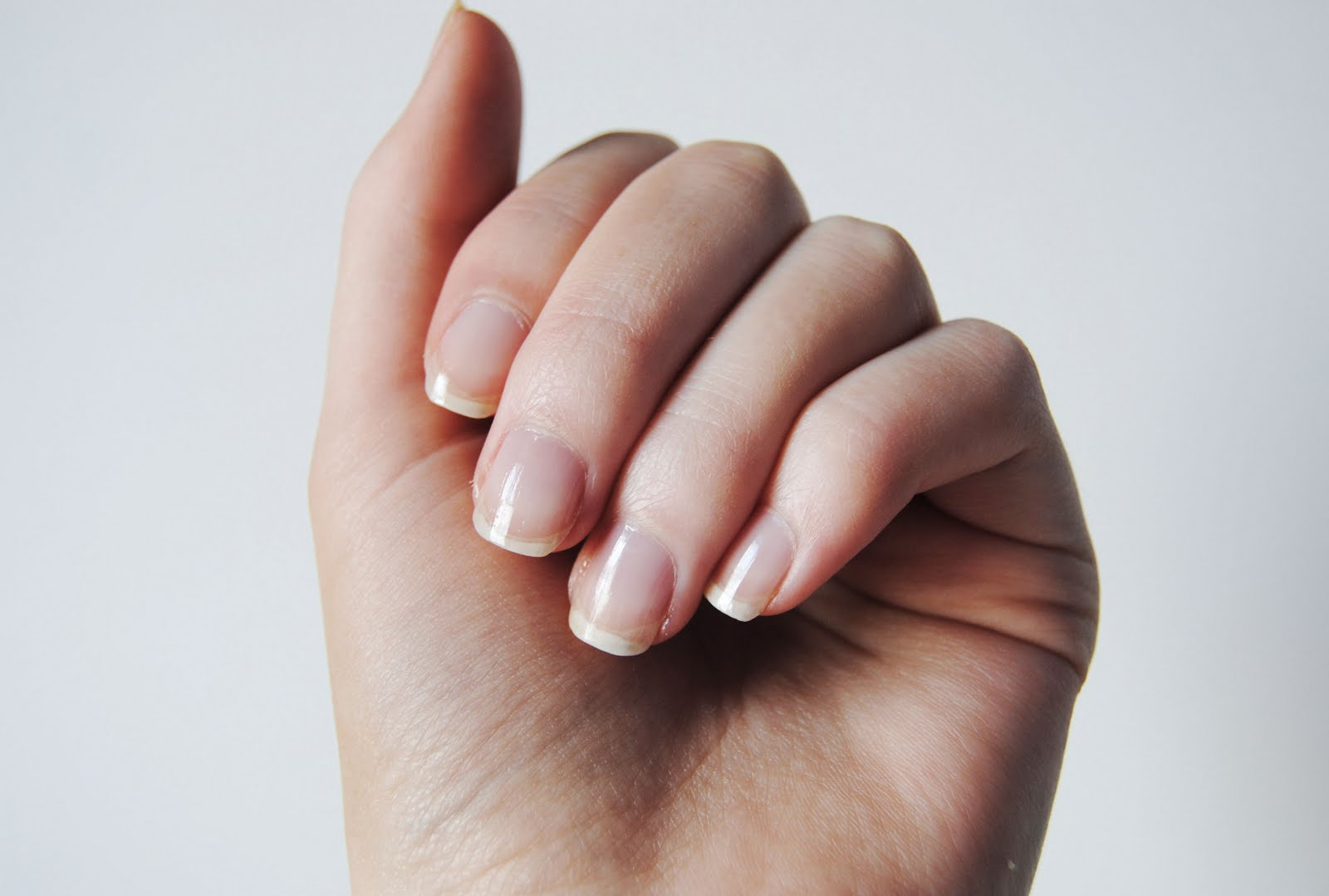 Stop Nail Biting | Hypnosis End Biting Nails | Hypnotherapy ...